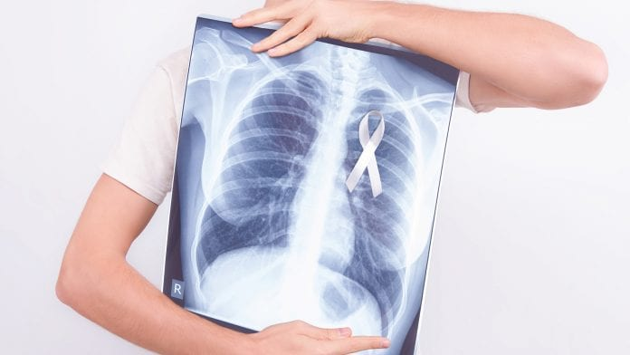 Non-small-Cell-Lung-Cancer.jpg