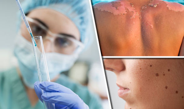 Skin-cancer-A-drug-breakthrough-could-pave-the-way-for-new-melanoma-treatments-750991.jpg