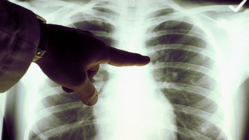 diagnosed lung cancer