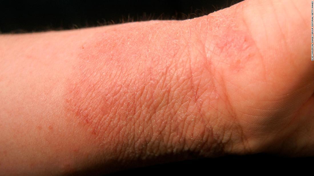 eczema1.jpg