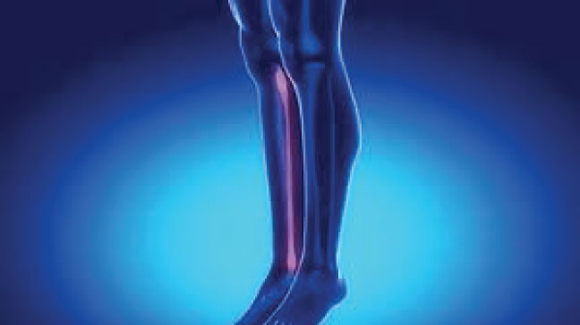 Sprained-ankle-symptoms-causes-treatment-and-recovery-time.jpg